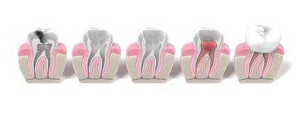 endodontics1