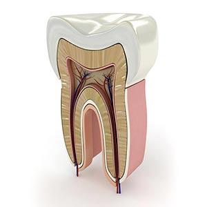 tratamiento-endodoncia