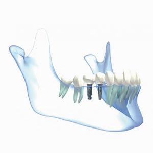 tratamiento-implantes-dentales